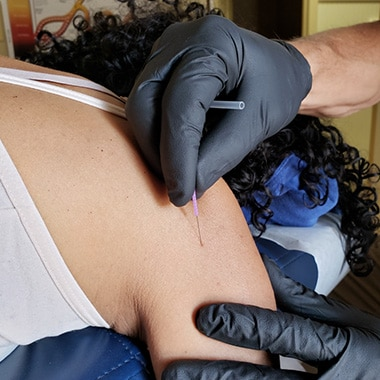 Chiropractic Center of Erie patient receiving dry needling treatment by Dr. Dave