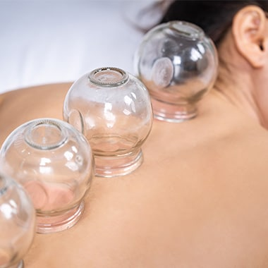 Patient receiving cupping therapy treatment at Chiropractic Center of Longmont