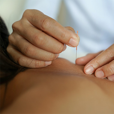 Best Area of the Body to Try Dry Needling
